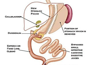 Duodenum Switch Weight Loss Surgery